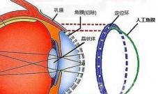 国产人工角膜或今年上半年用于临床
