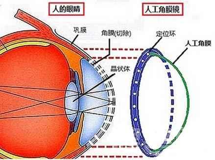 国产人工角膜